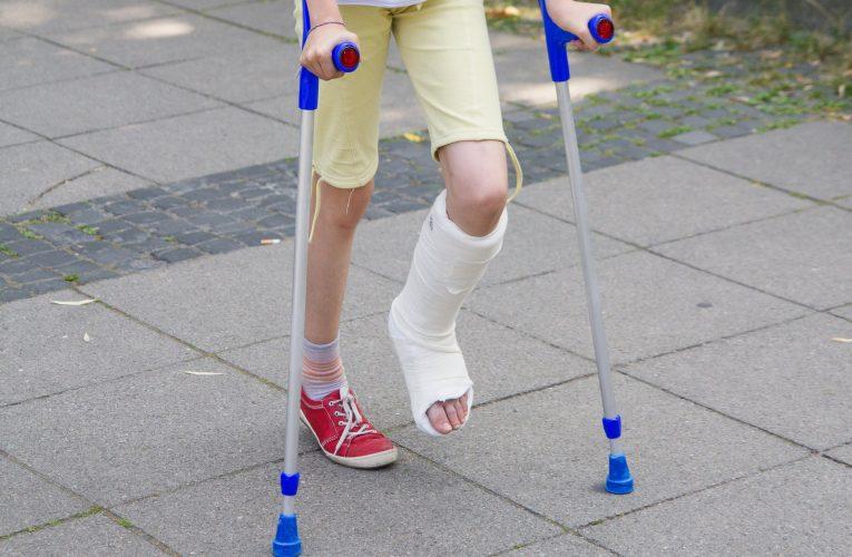 我的孩子骨折需要手術嗎?